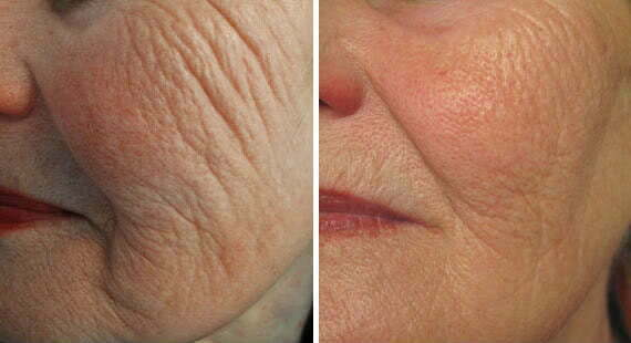 10 Reasons to Consider Profound Skin Tightening